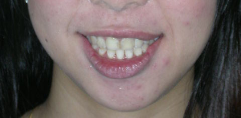 Patient-B---After-Jaw