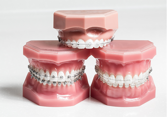 Metal Braces or Clear Braces? Which Is the Better Fit?